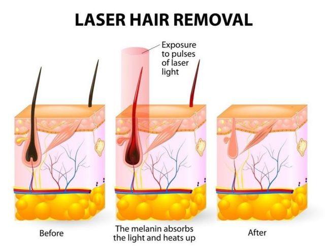 Лучшие лазерные эпиляторы для домашнего использования: обзор, отзывы